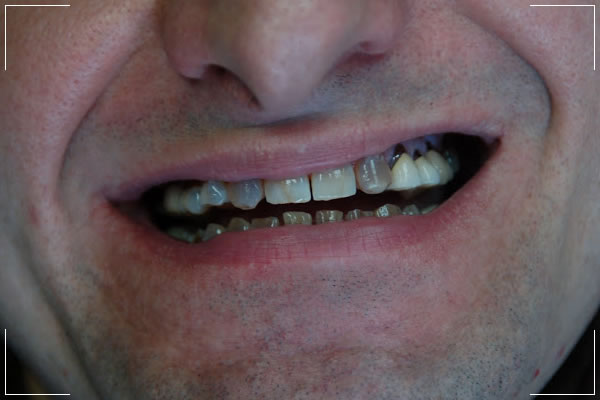 a before image of a male patient's smile getting a smile makeover