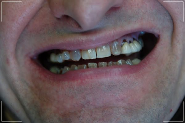 man with decayed and cracked teeth before his smile makeover