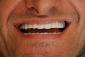 the after image of a male patient's smile makeover