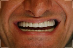 man with a repaired smile after a complete smile makeover