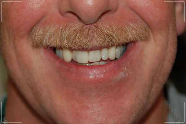 older man with some misaligned and crooked teeth before receiving crowns or bridges