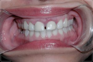 woman with a mild front gapped teeth