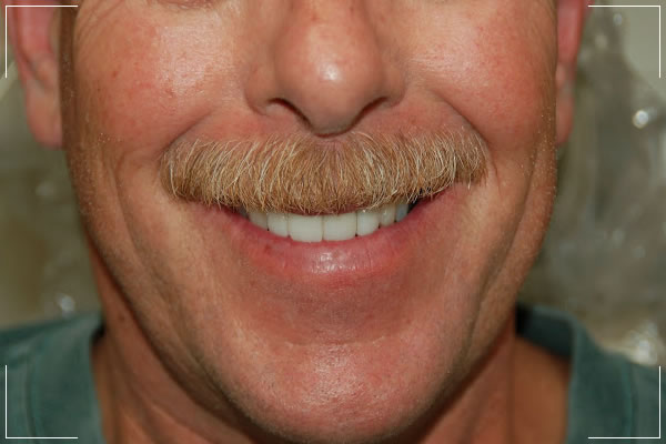 after image of an older man with new dental crowns or bridges