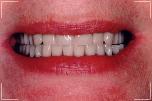 an image of a patients beautiful new smile with dental implants