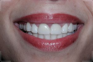 woman with gap now has a repaired smile