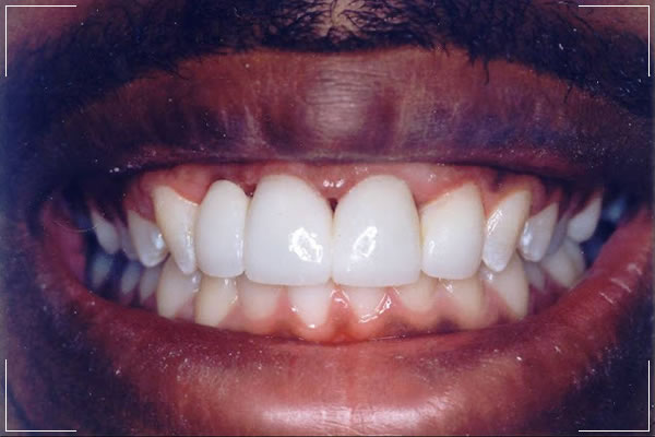 a man's after treatment with crowns & bridges