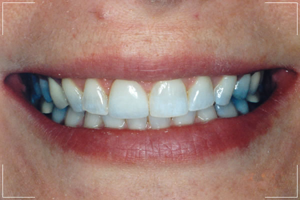 woman with her new teeth after her smile makeover