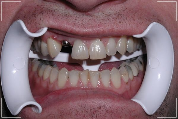 a man with a missing tooth and an single implant replacement
