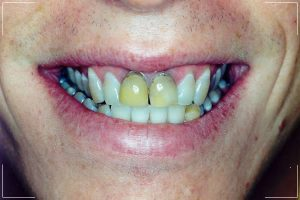 man with decayed front teeth receiving a smile makeover