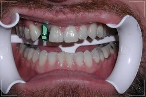 a man with a missing tooth receiving his single dental implant