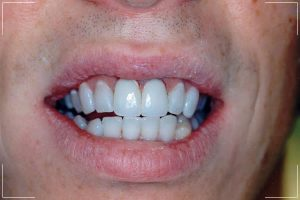 man who had decayed front teeth after his smile makeover