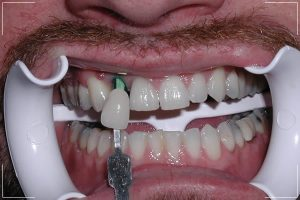 a man with a missing tooth receiving his final restoration for his single dental implant