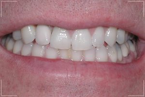 a man's new smile with dental implants
