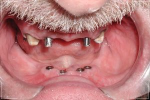an older man receiving dental implants in both jaws