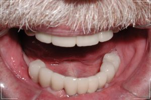 an image of an older man's lower jaw with his implant dentures