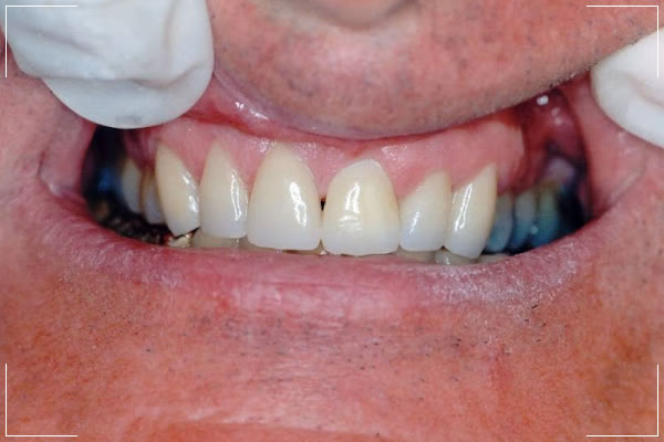 after image of a male patient's veneers