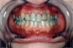 before image of a female patient's decayed teeth