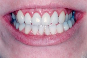 after image of a female patient's new veneers