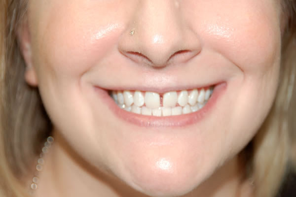 close-up image of a woman with small gap