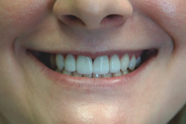 a woman smiling with her new veneers