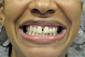 a woman with some decayed teeth and gapped front teeth