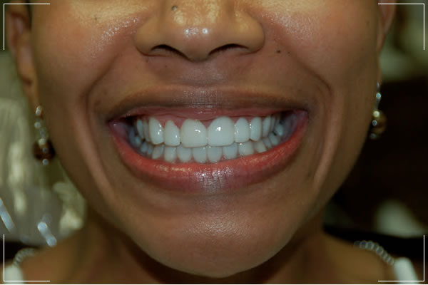 a woman with veneers that repairs her decayed teeth and gapped front teeth