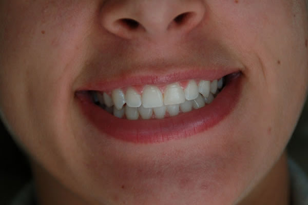 close-up of a new smile with veneers