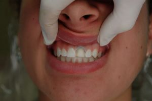 mid process of patient receiving veneers on a tooth