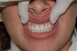finished process of a patient with veneers on his front tooth