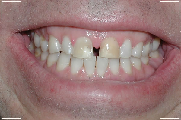 before image of patient who needs veneers for their gapped front teeth