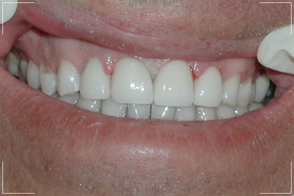 after image of a patient with new front teeth veneers