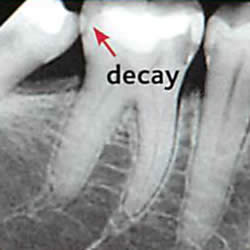 x-ray of tooth decay