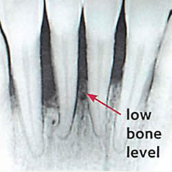 x-ray with a low bone density