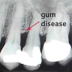 x-ray of mild gum disease