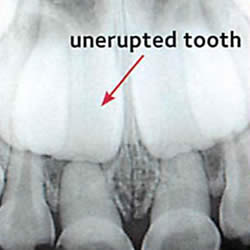 x-ray of an unerupted tooth